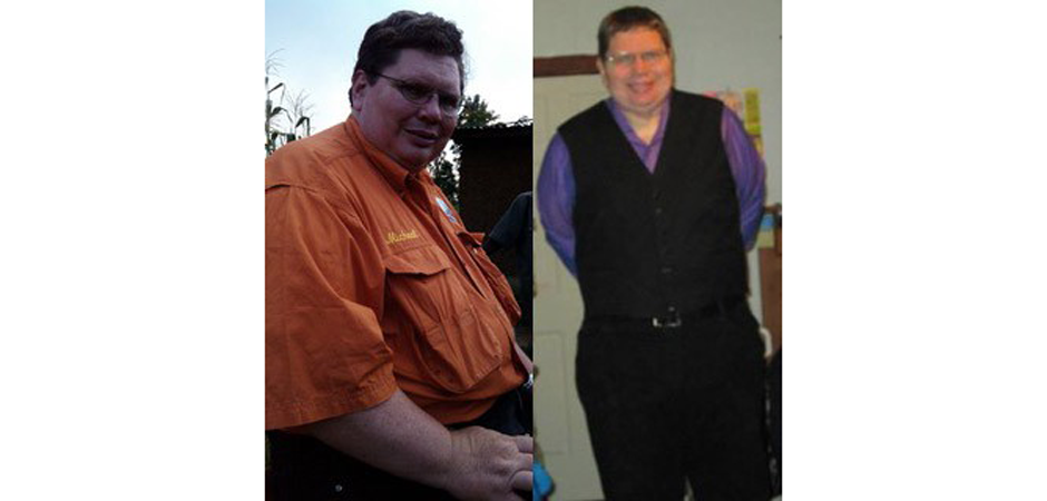 Michael Dickerson Before and After Photo